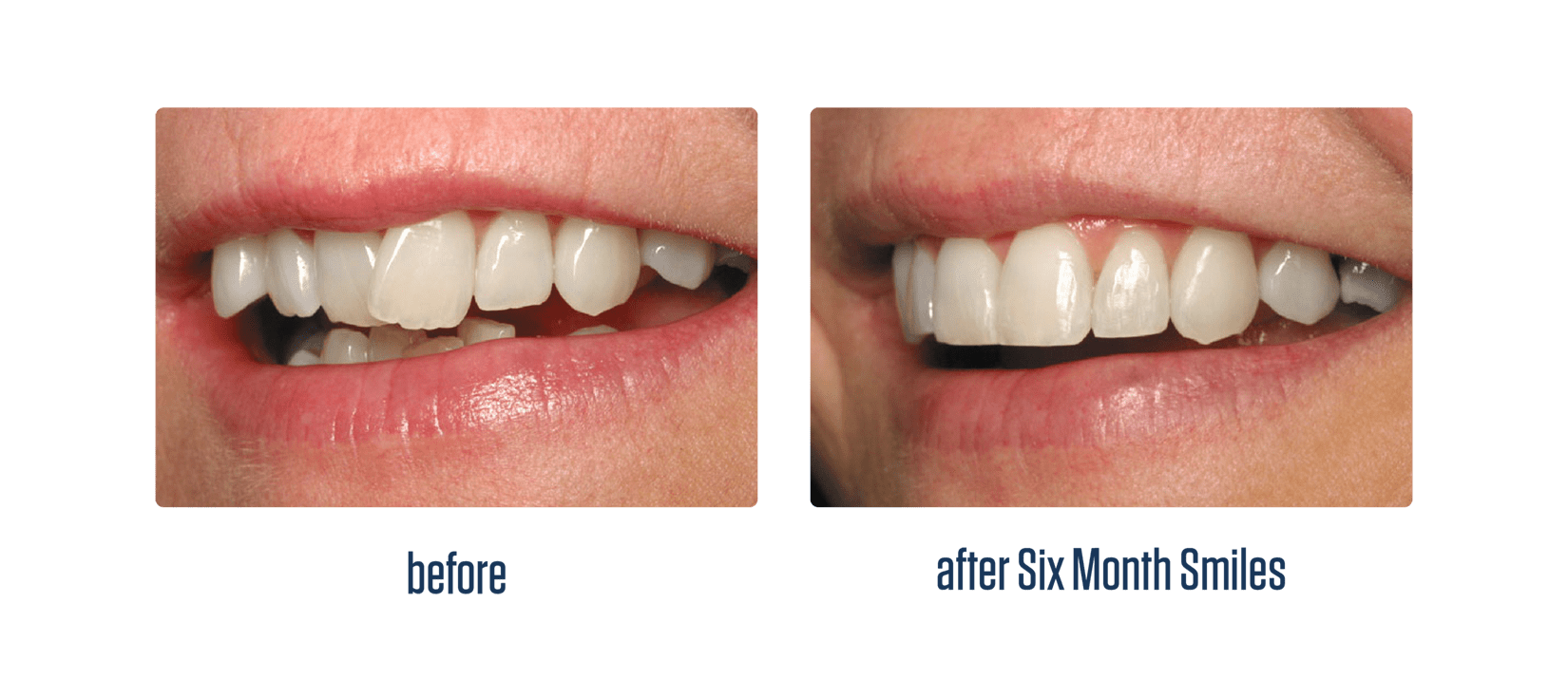 https://www.postfallsfamilydental.com/uploads/6month-smiles-beforeafter-teeth.png