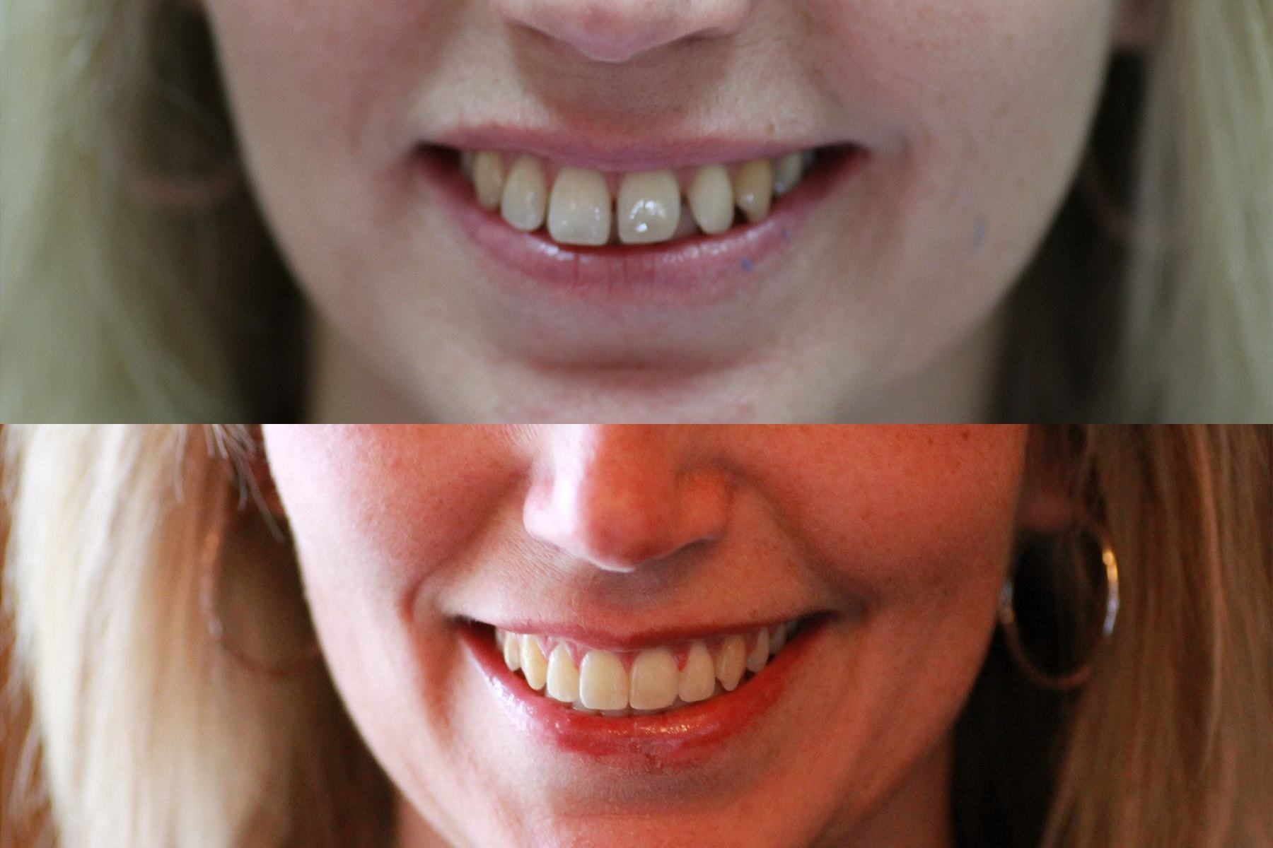 https://www.postfallsfamilydental.com/uploads/Teeth-Straightening-Julie-before-and-after.jpg