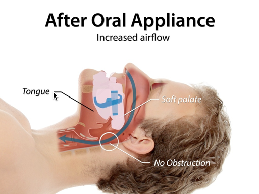 https://www.postfallsfamilydental.com/uploads/after-oral-appliance.png